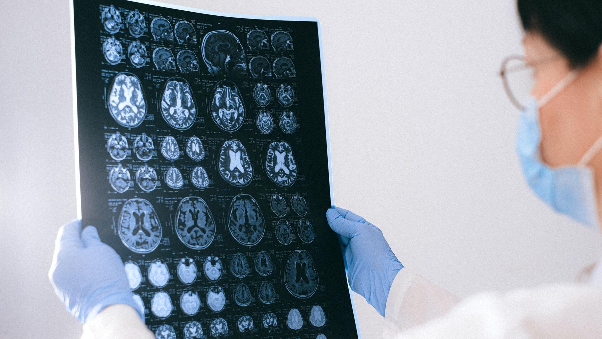 doctor observing brain images