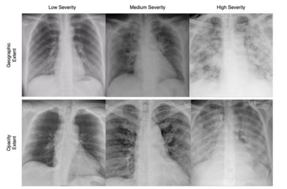Chest x-rays of COVID-19 patients.