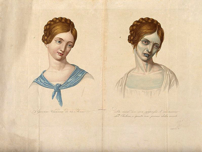 young Viennese woman, aged 23, depicted before and after contracting cholera, 1831.