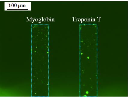 100 micrometer-scale view of Myoglobin and Troponin T.