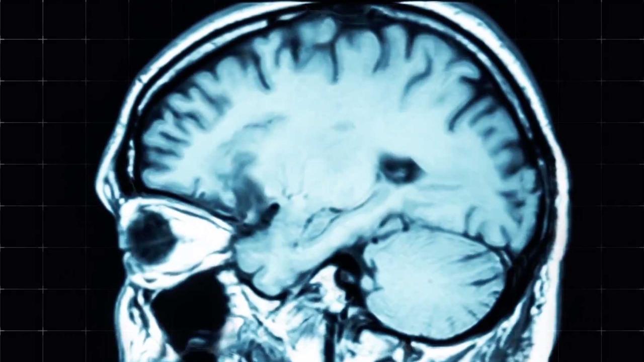 Xray of the brain