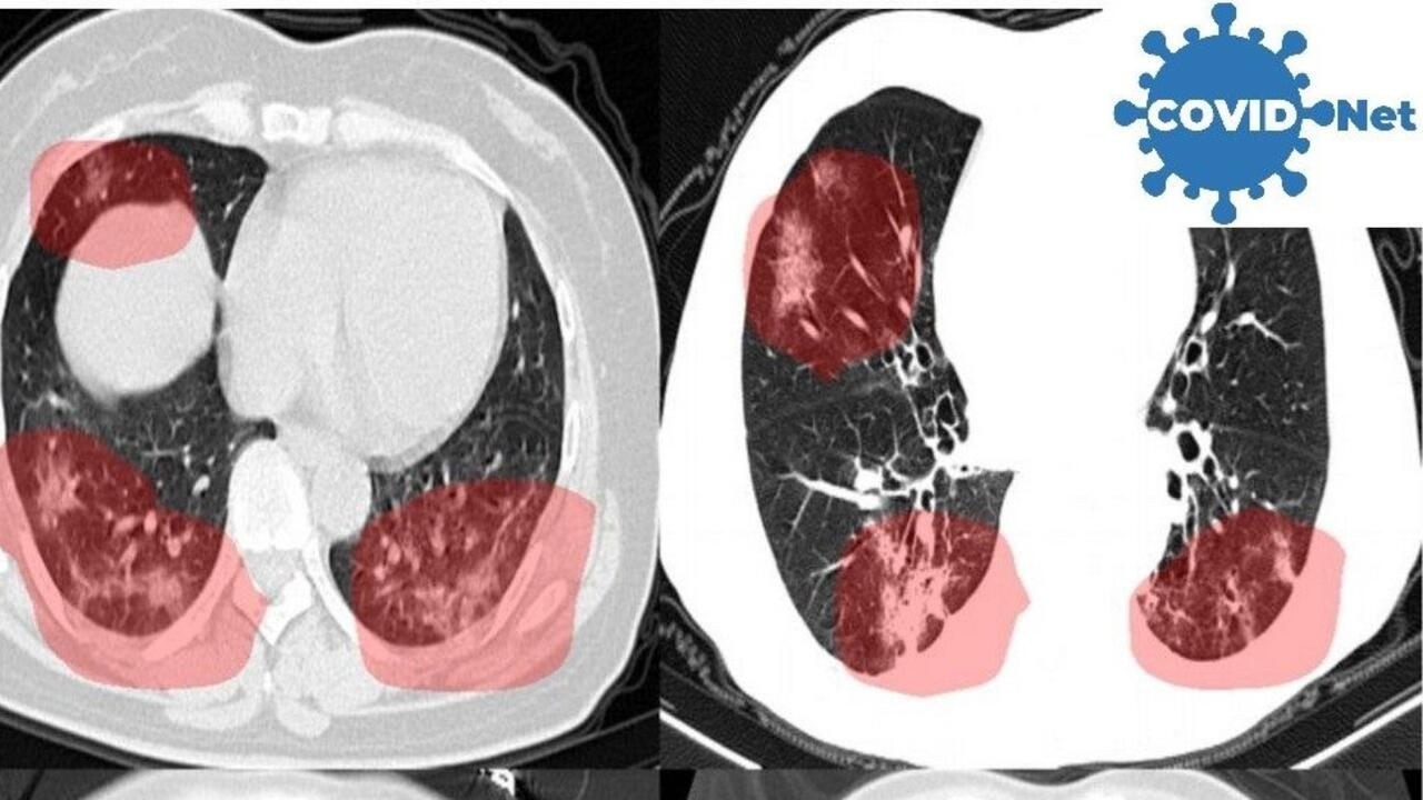 CT scans of lungs, with areas of concern highlighted by new AI software developed to screen for COVID-19.