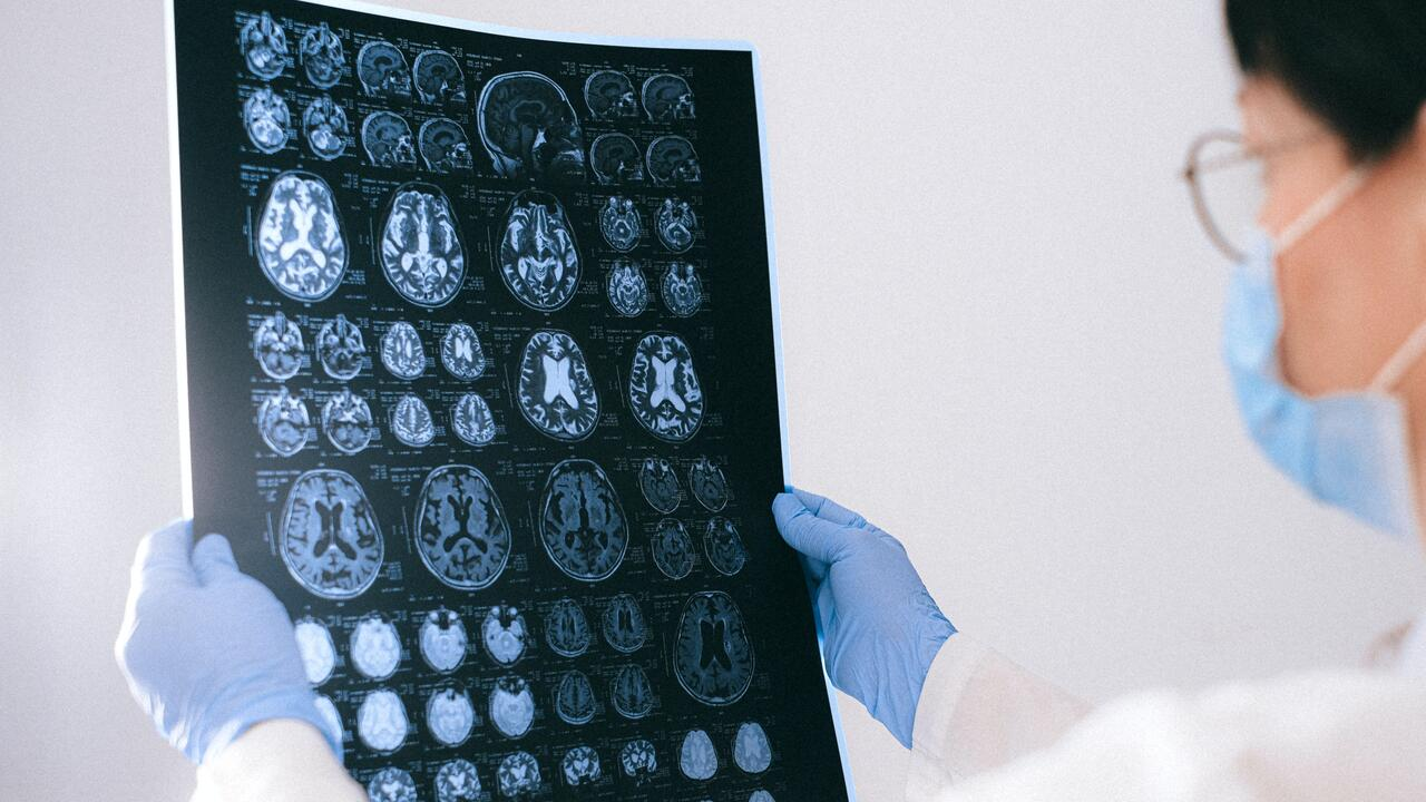 Doctor examines images of a brain