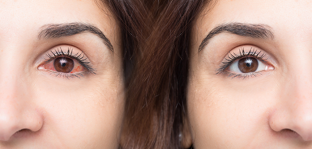 Woman with red eye before and after