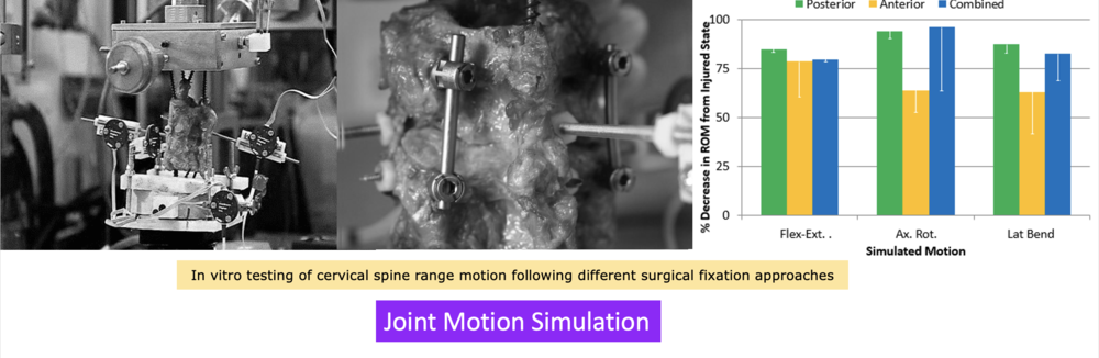 In vitro testing of cervical spine range motion following different surgical fixation approaches