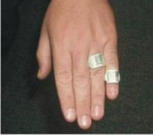 Ring badge dosimeter