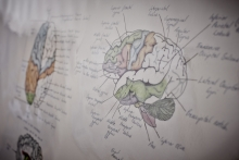 White board drawing of a brain and its anatomy.