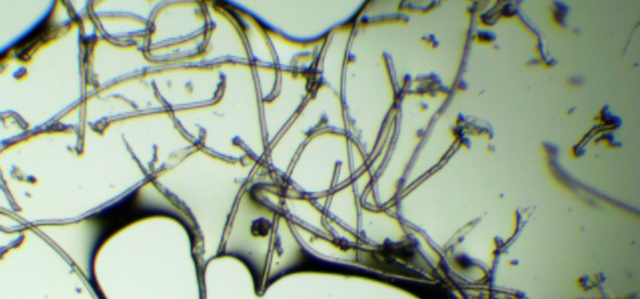 Microfibres in water at 40x magnification.