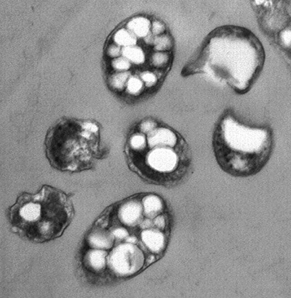 Transmission Electron Microscope (TEM) picture of S. meliloti cells, filled with bioplastics granules (credit: G. Meglei)