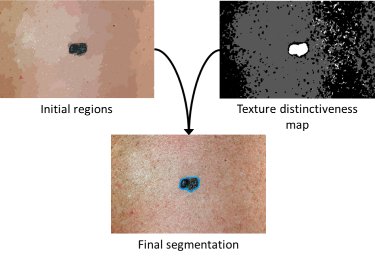 Skin Cancer Detection | Vision and Image Processing Lab