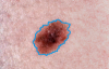 Skin Cancer Detection Image